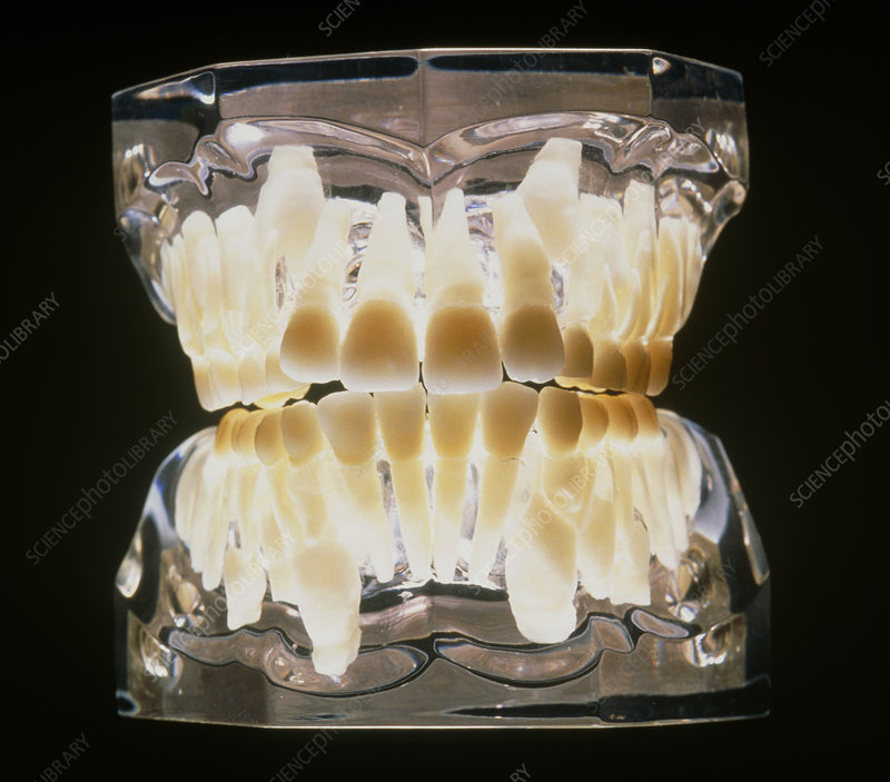 Dental model of an 11 year old child's teeth