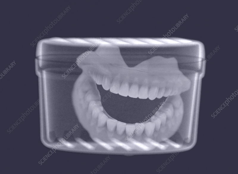 False teeth X-ray