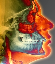 Orthodontic brace X-ray