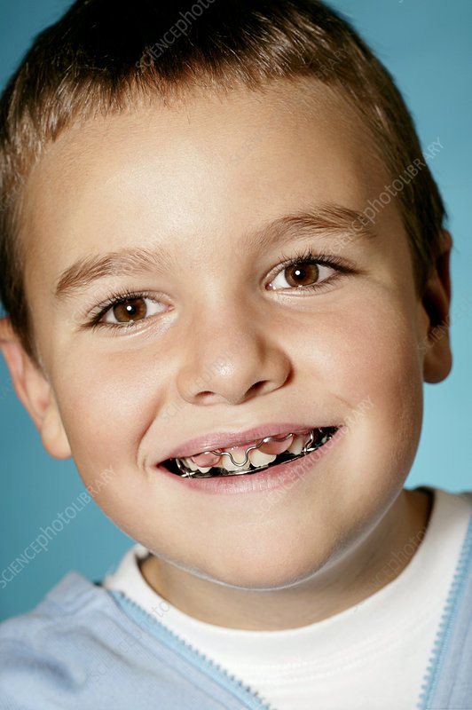 Young boy wearing a dental retainer