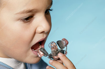 Young boy with a dental retainer