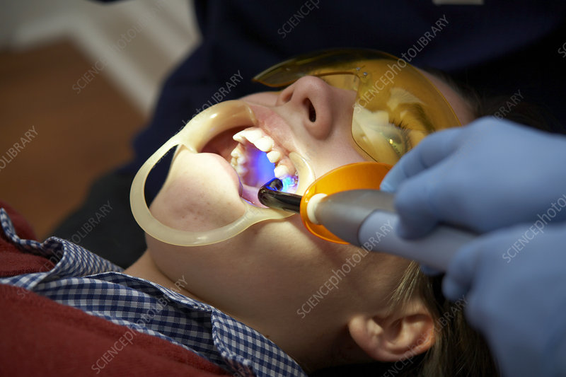 Undescended tooth treatment