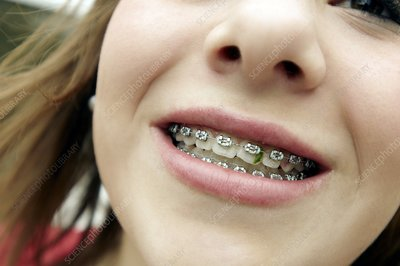 Trapped food in dental braces
