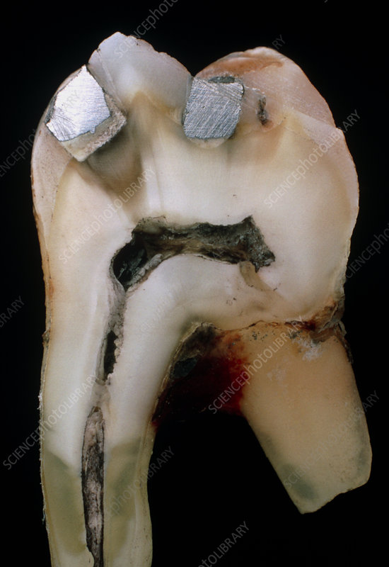 Extracted molar