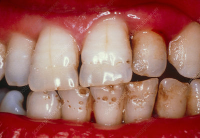 Pitted teeth: hypoplasia of the enamel