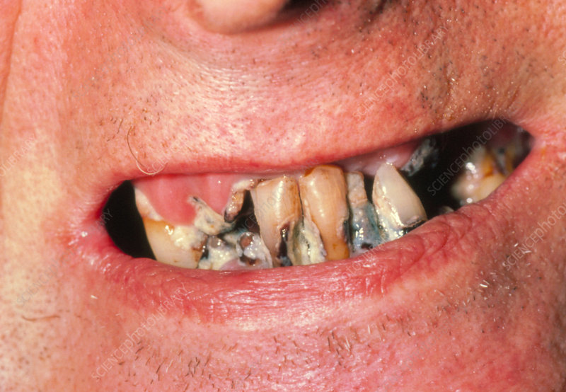 Very poor dental care in a psychiatric patient