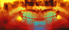 Coloured pan-oral X-ray of impacted wisdom teeth