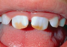 Brown staining of child's teeth due to fluorosis.