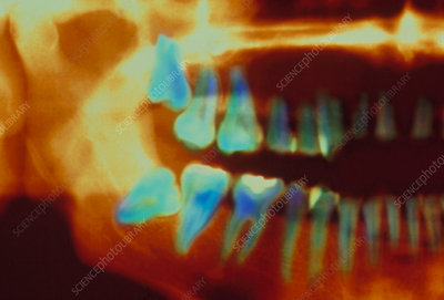 Coloured X-ray of impacted wisdom teeth
