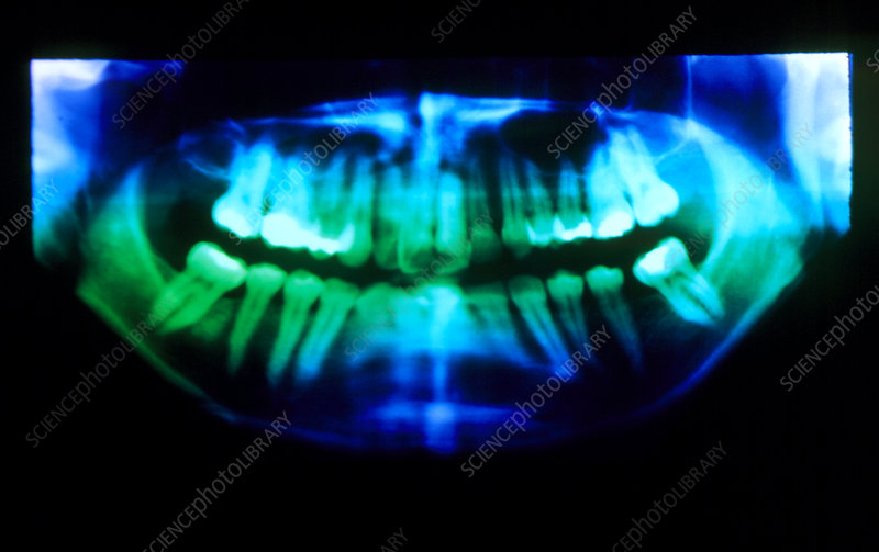 False-colour pan-oral X-ray showing fillings