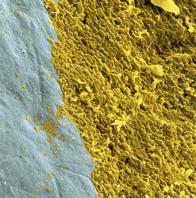 Coloured SEM of a dental plaque seen on a tooth