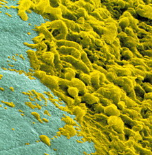 Coloured SEM of dental plaque seen on a tooth