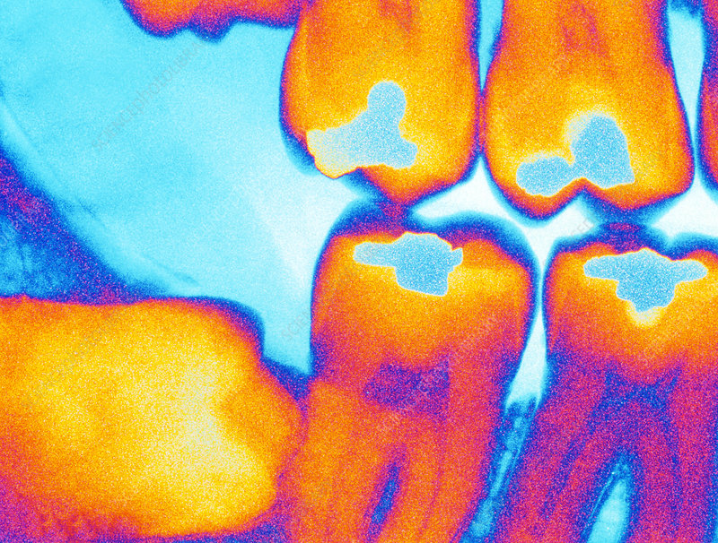 Coloured X-ray of an impacted wisdom tooth