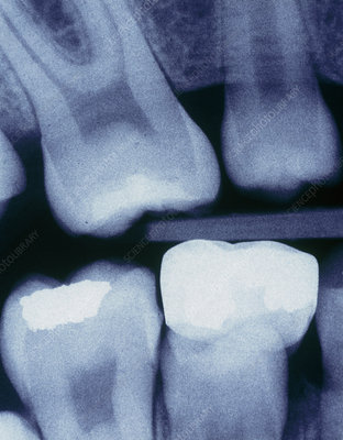 X-ray of child's teeth with fillings and a crown