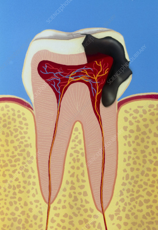 Artwork of section through decaying tooth (caries)