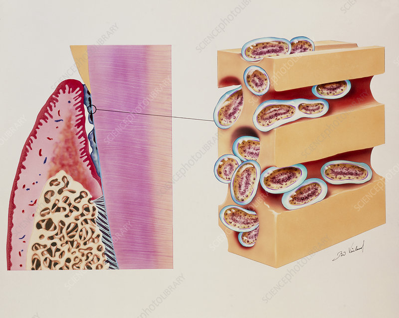 Artwork of bacterial plaque on a tooth neck