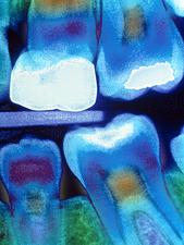 Colour X-ray of child's teeth with fillin