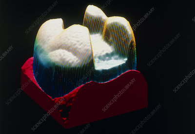Computer graphic of a tooth ready for dental inlay