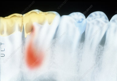 X-ray of molar teeth with gold fillings and cavity