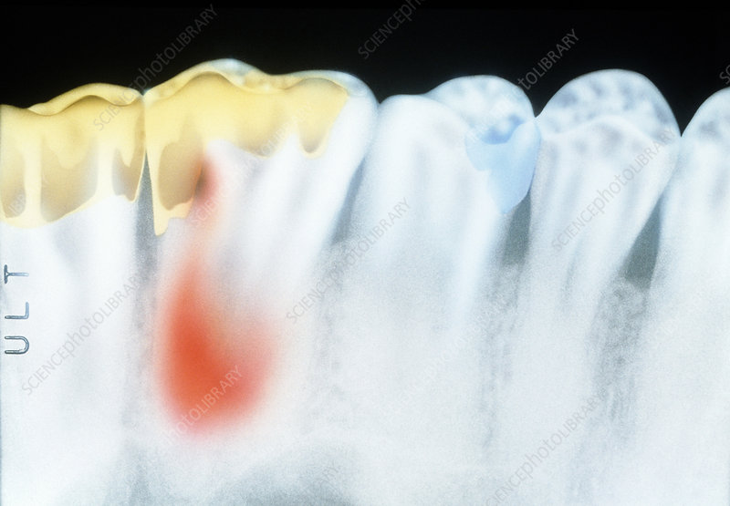 x ray of molar teeth with gold fillings and cavity stock image