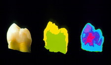 Terahertz images of tooth with an internal cavity
