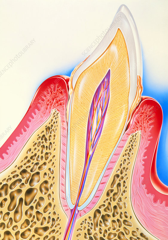 Artwork of tooth showing periodontal disease