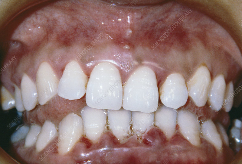 what to do if you have gingivitis