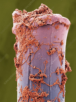 Used toothbrush bristle, SEM