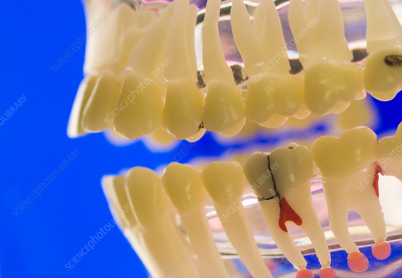 Tooth decay, dental model