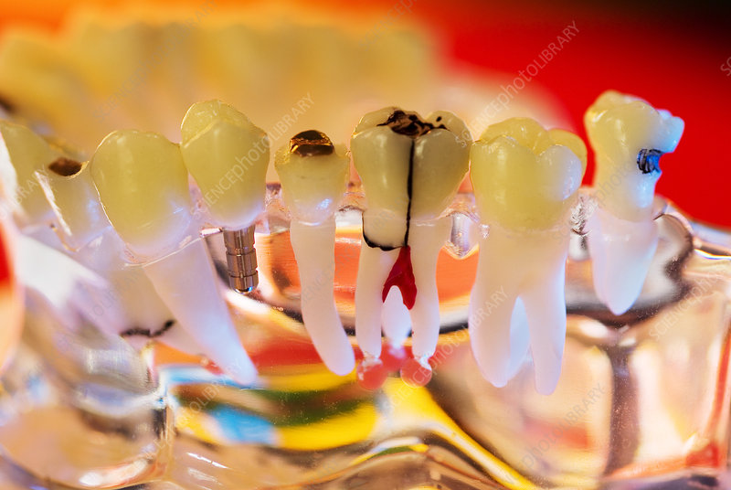 Tooth decay and implants, dental model