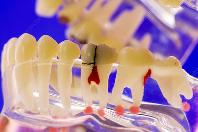 Tooth disorders, dental model