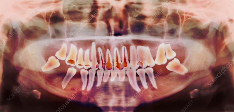 Root-canal treatment, dental X-ray