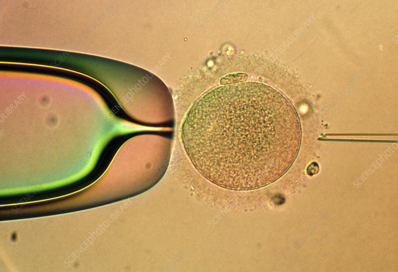 LM of IVF: egg about to be injected with sperm DNA