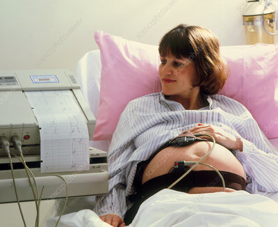 Woman in labour with cardiotocography machine