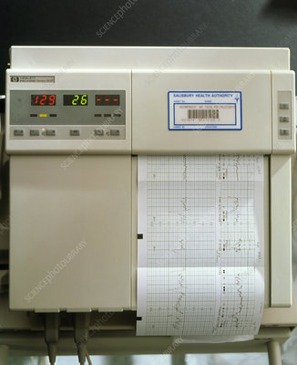 View of a foetal cardiotocography (CTG) machine
