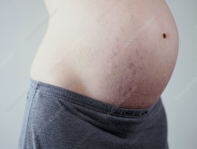 Stretch marks in pregnancy