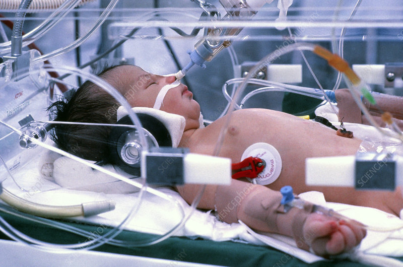 Infant receives intensive care
