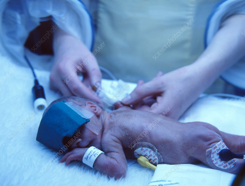 Premature baby undergoing treatment for jaundice