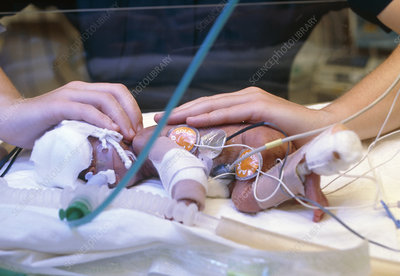 Premature infant with tubes and sensors