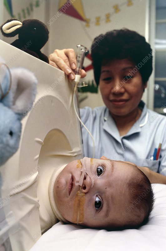 Premature baby in a miniature iron lung