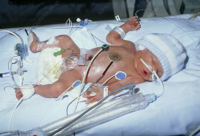 Premature baby in an intensive care unit