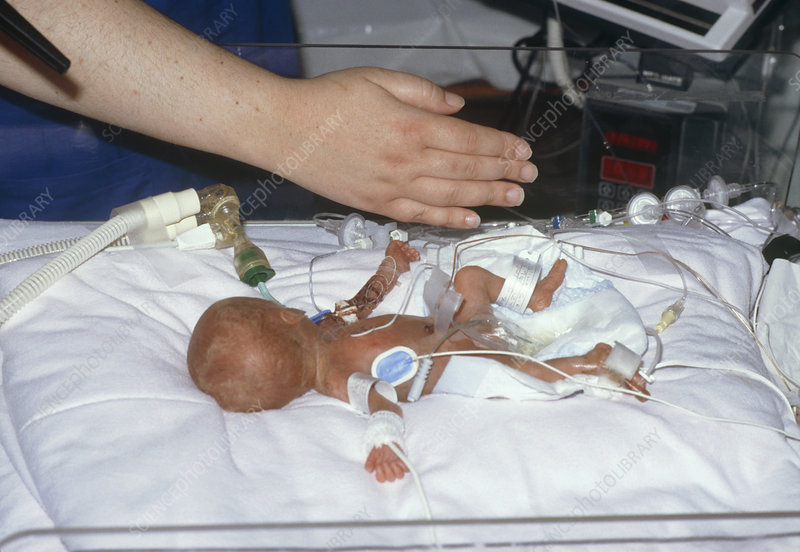 Premature baby with nurse's hand to indicate size