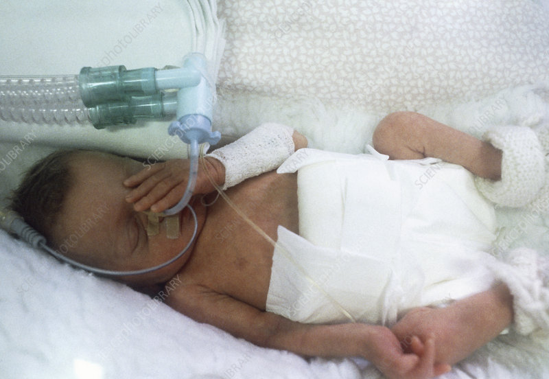Premature baby in incubator with respirator