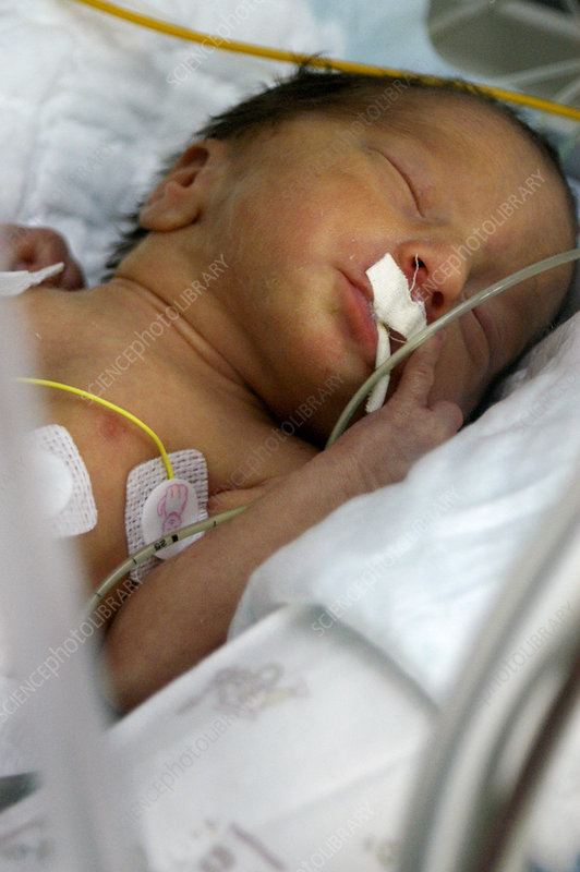 Jaundiced premature baby