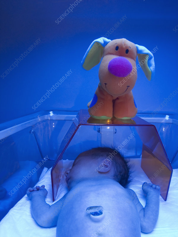 Neonatal jaundice light treatment