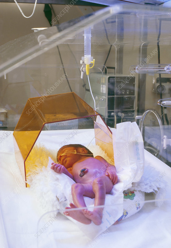 Neonatal jaundice treatment