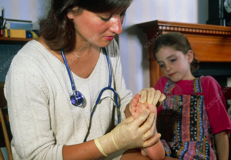 Doctor examines verruca on foot of young girl