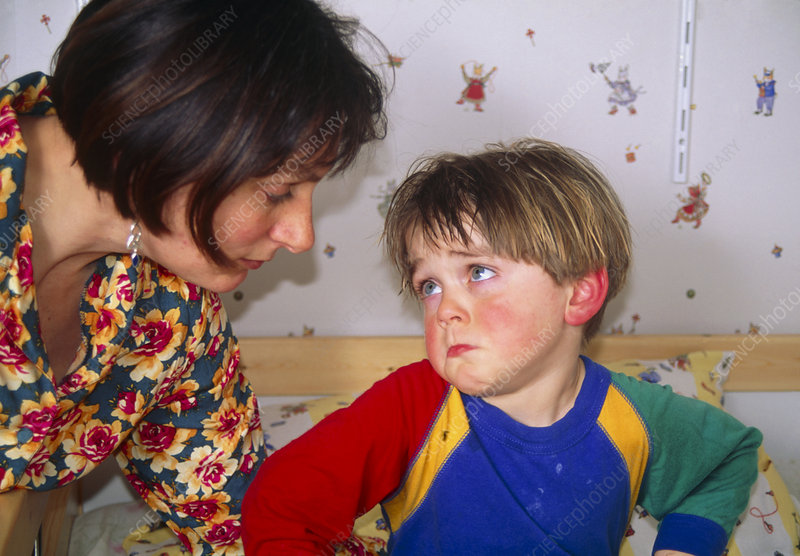 Feverish 3 year-old child comforted by his mother