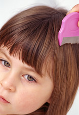 Removing head lice