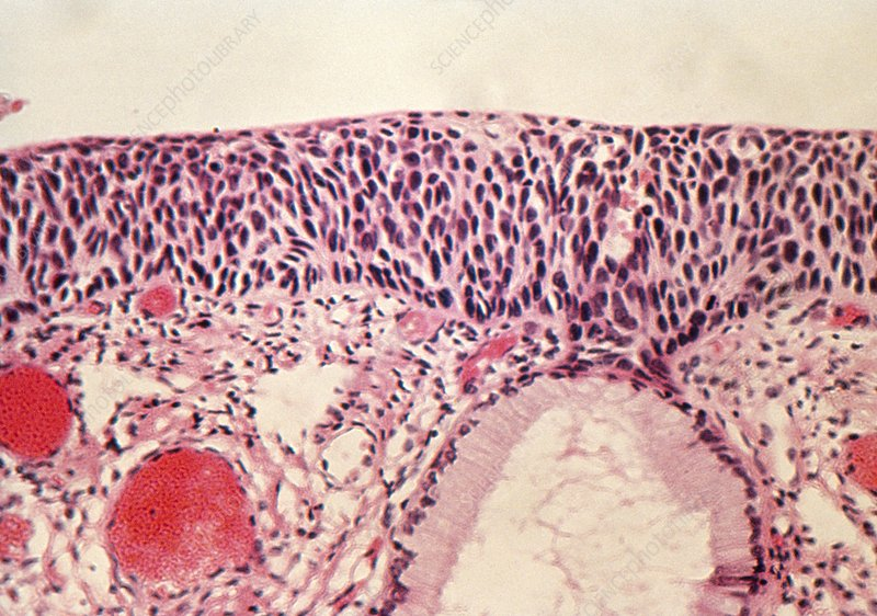 Light micrograph of cervix revealing carcinoma